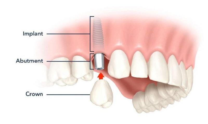 جراحیهای مورد نیاز برای ایمپلنت دندان