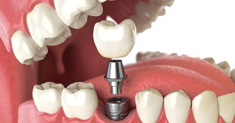 کاشت دندان