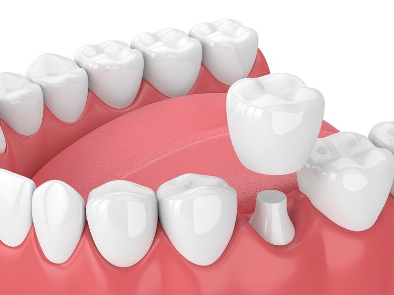 ساخت روکش دندان