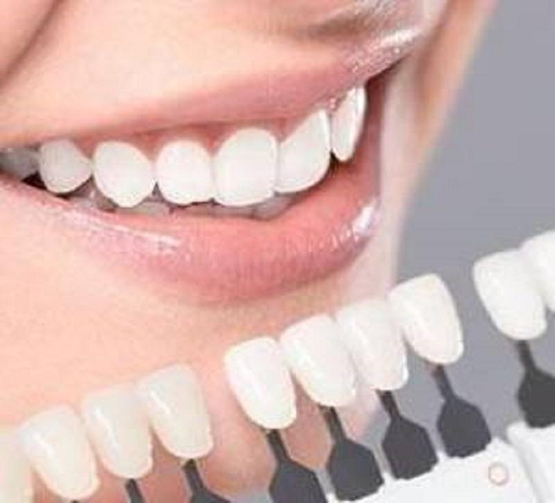 لمینت دندان برای این افراد اصلا مناسب نیست!