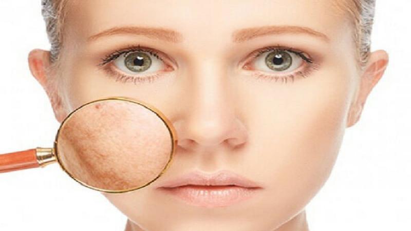 لیزر درمانی کک و مک