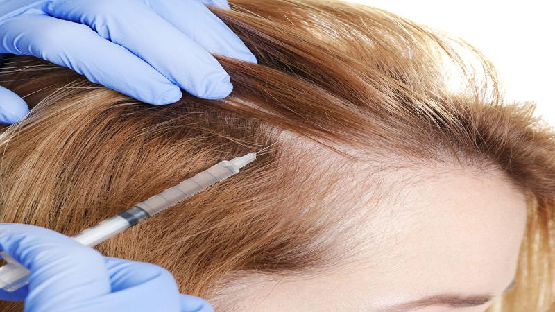 درمان ریزش مو با روش پی آر پی