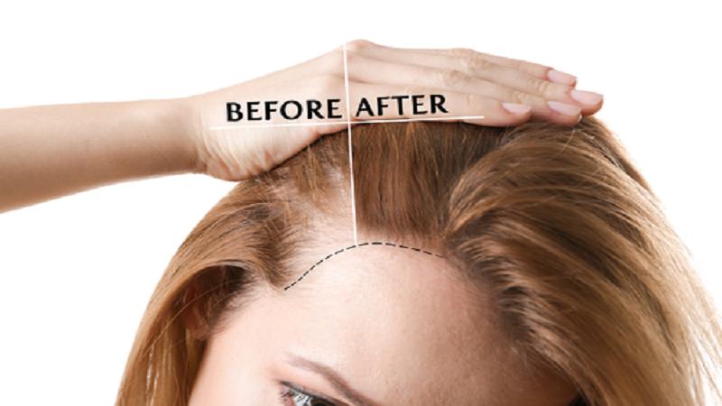 عملکرد prp در درمان ریزش مو