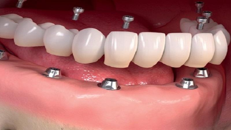 کاشت دندان (ایمپلنت)