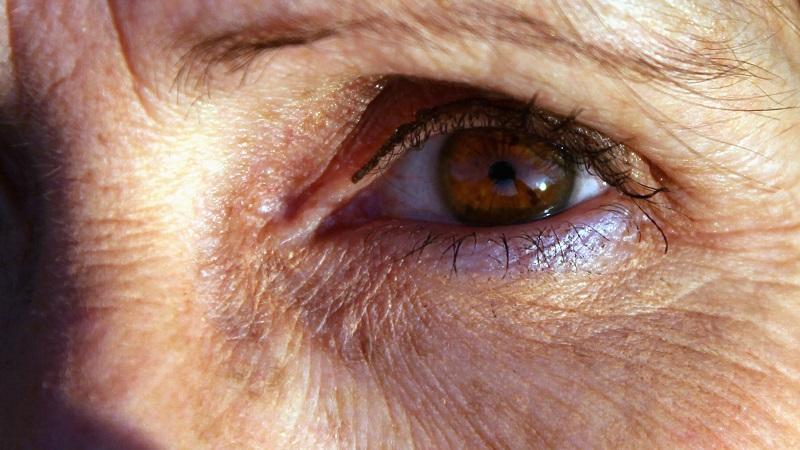 کلینیک شبانه روزی فولادشهر چه عواملی بر بروز پیری پوست موثر است ؟