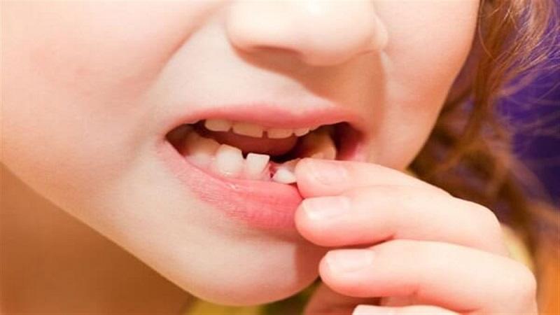 دندان شیری و زمان ریزش آن در کودکان|کلینیک شبانه روزی آریا فولادشهر