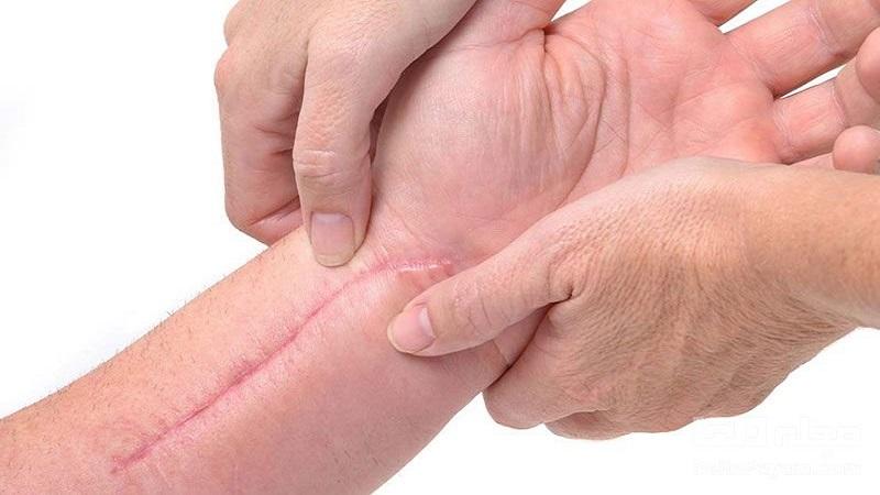 چه زخمی را باید بخیه کرد؟ | کلینیک شبانه روزی آریا فولادشهر