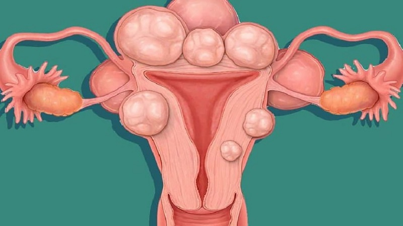 درمان فیروم رحم در دوران بارداری | کلینیک شبانه روزی فولادشهر