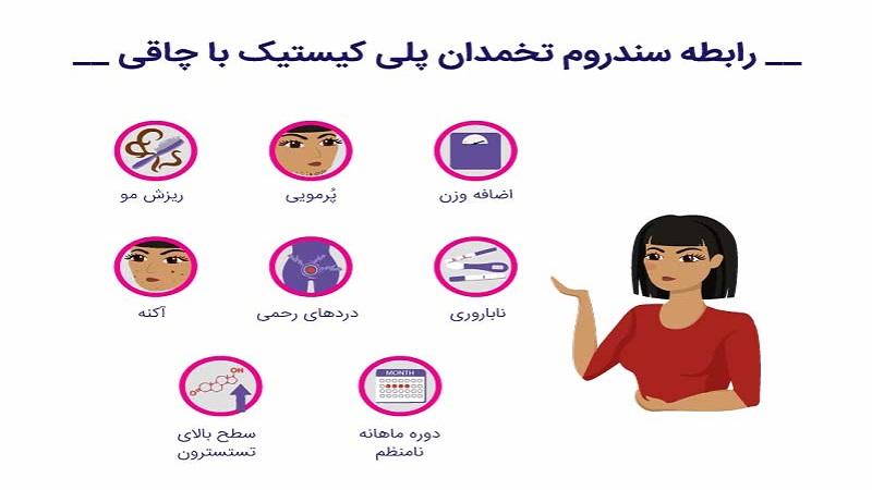 سندرم تخمدان پلی کیستیک و ریزش مو | کلینیک شبانه روزی فولادشهر