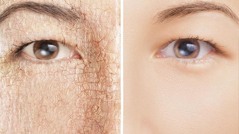 نکات مراقبتی برای پوسته پوسته شدن پوست | کلینیک شبانه روزی فولادشهر