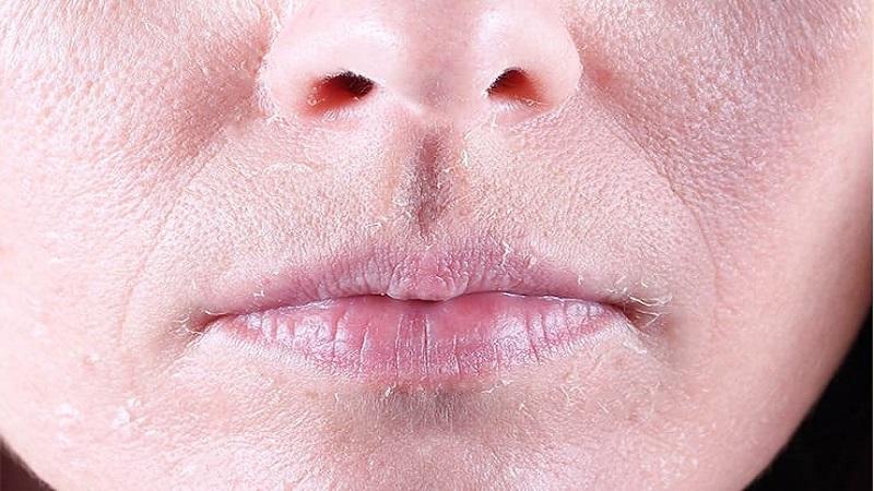 نکات مراقبتی برای پوسته پوسته شدن پوست   کلینیک شبانه روزی فولادشهر