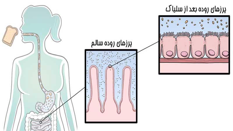 آشنایی کامل با بیماری سلیاک | کلینیک شبانه روزی فولادشهر
