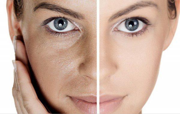 پیشگیری و درمان باز شدن منافذ پوست | کلینیک شبانه روزی فولادشهر