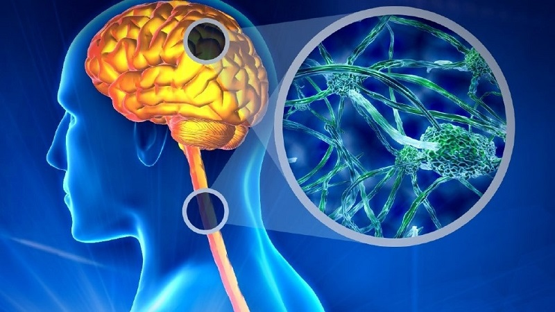 روش های تشخیصی در بیماری ام اس | کلینیک شبانه روزی فولادشهر