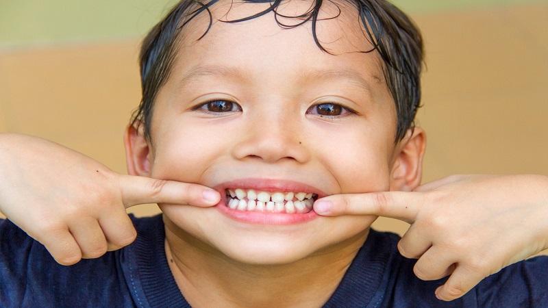لکه سفید روی دندان کودکان | کلینیک شبانه روزی فولادشهر